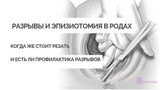 Разрывы и эпизиотомия в родах - Др. Елена Березовская -