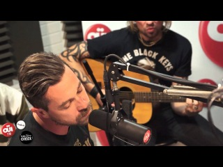 Les Fatals Picards - Gros Con - Session Acoustique OI FM