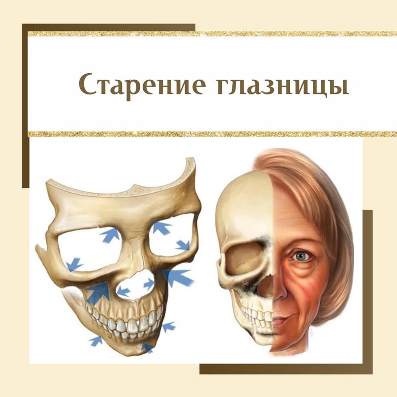 зоны резорбции костной ткани (гормон-зависимые зоны) указаны стрелками