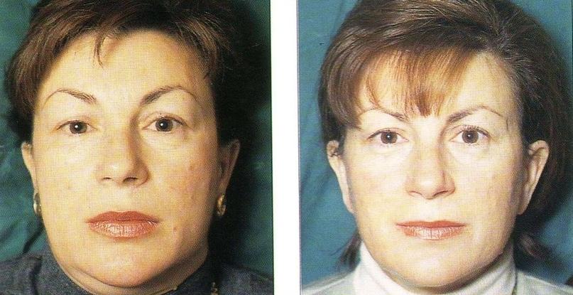 обострение гипотиреоза (слева) и стойкая ремиссия (справа)