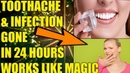 HOME REMEDIES FOR TOOTH INFECTION SEVERE TOOTHACHE REMEDY HOW TO STOP TOOTH PAIN FAST