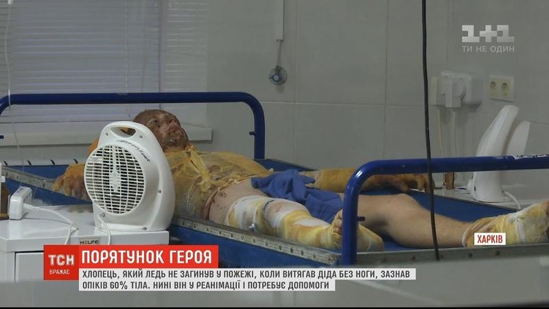 За життя юнака який врятував свого дідуся під час пожежі борються харківські лікарі