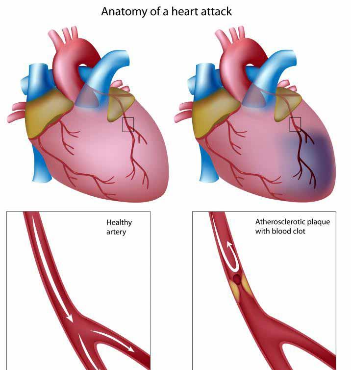 Анатомия сердечного приступа.