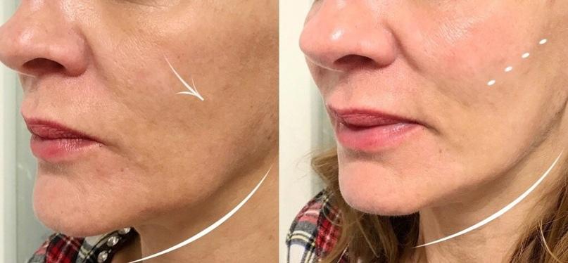 Коррекция в зоне нижней челюсти., изображение №8
