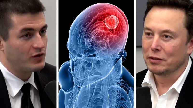 Elon Musk: Understanding the Human Brain at Neuralink