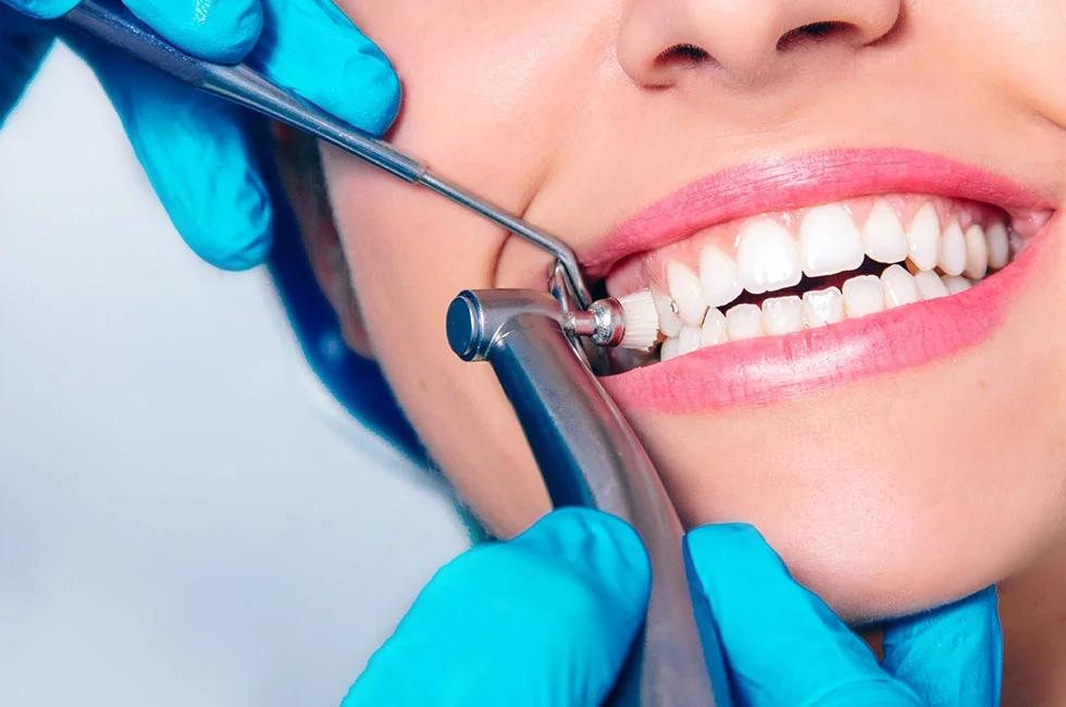 Когда необходима профессиональная гигиена полости рта