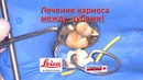 Лечение кариеса 26 зуба через микроскоп! Длинная версия!